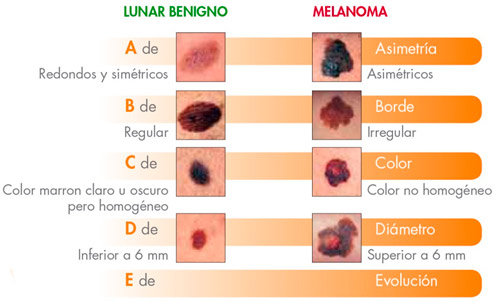 lunar_melanoma